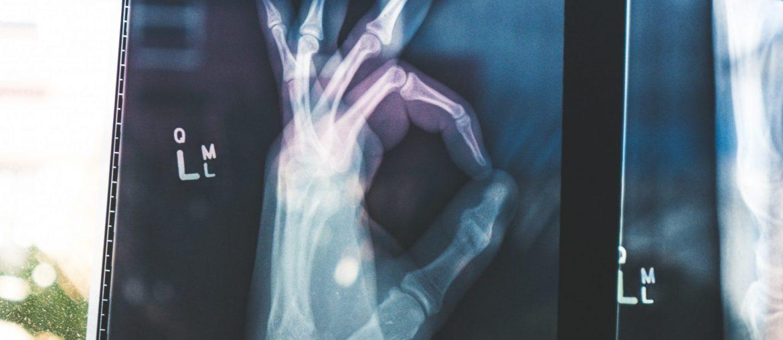 OK röntgen - gyerek jogai az orvosnál